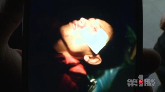 重庆一男子放烟花左眼被炸瞎 安监部门介入调查