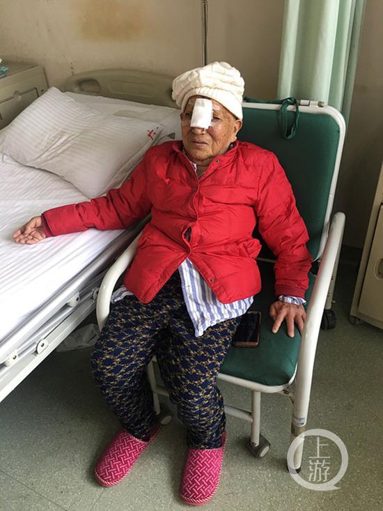 △手术成功摘除肿瘤,郑婆婆又能用鼻子呼吸了
