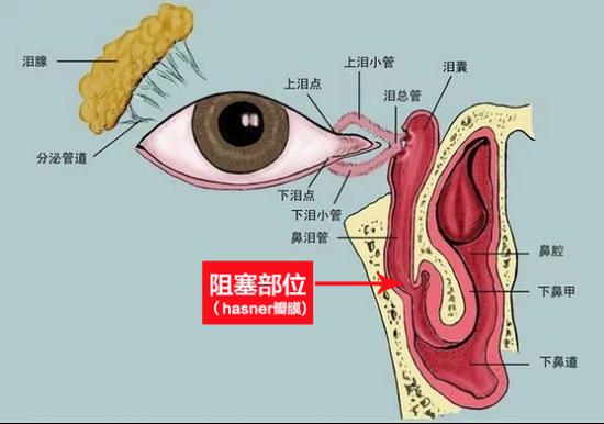 泪液排除系统