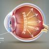 近视防控月聚焦眼健康