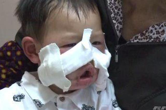 重庆4岁男童摔向开动中的电锯 面部惨被割伤