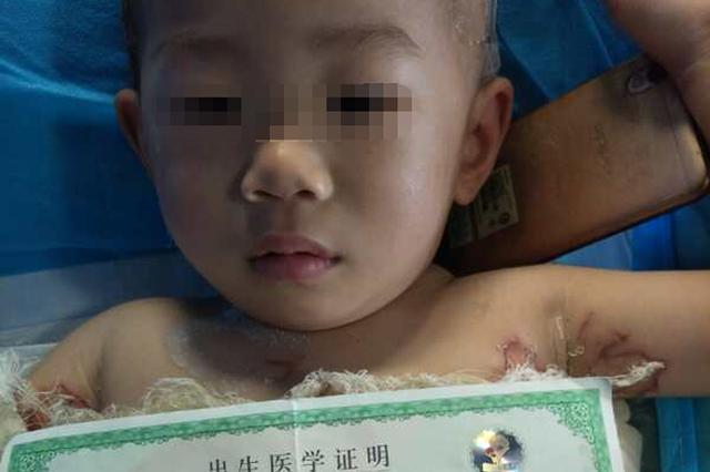 两岁幼儿跌倒开水锅中 全身皮肤55%特重度烫伤