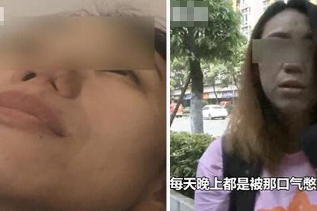 尴尬!整容院员工以身作则去整鼻 结果鼻孔没了