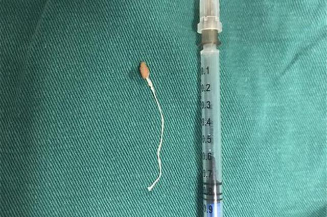 可怕!医生从他脖子里取出一条8厘米的虫