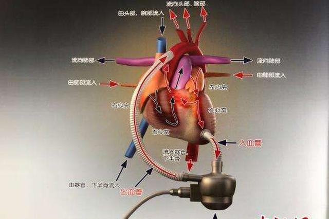 """国内首款人工心脏""""永仁心""""在重庆获批上市"""
