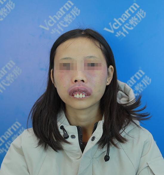 小荣面部唇部血管瘤术前照片
