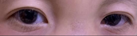 欣欣手术后的双眼