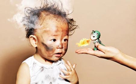 两岁男孩拿着烟花玩耍 被另一个熊孩子点燃了