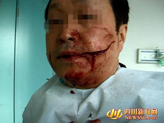 六旬老人公交制止扒手被割脸