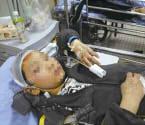 温州12岁男孩贪玩遇车祸
