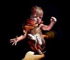 实拍婴儿剖腹产出生瞬间