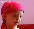 17岁早衰症少女离世
