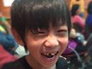 Kimi掉门牙开心大笑