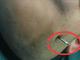 湖北男子遭8厘米长钢钉刺入脑部奇迹生还(图)
