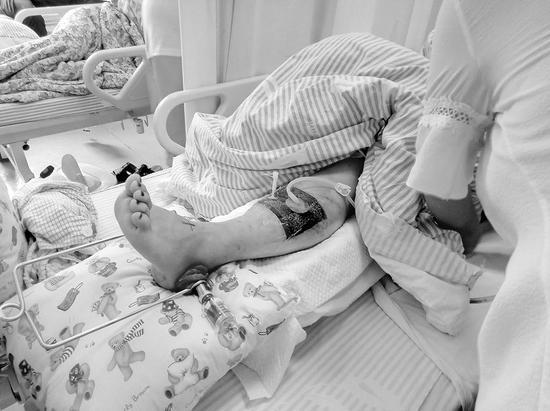 女子左小腿开放性骨折,一块拳头般大小的皮肉缺损。