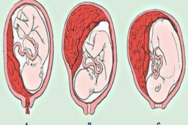 """孕妇""""坏肚子""""不想竟是胎盘早剥"""