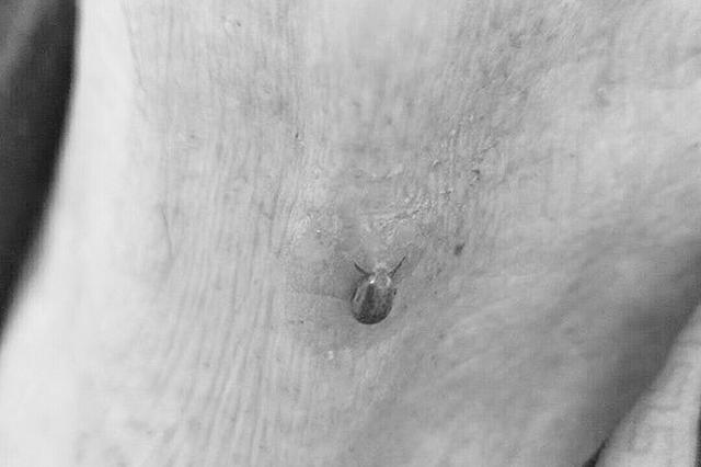 93岁老太脖子痛痒一周医生从中吸出一只蜱虫