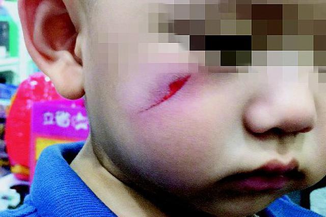 玩具店玩耍生意外 男童脸被割出口子