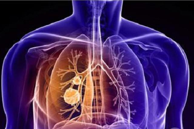 大连市低保家庭肺癌早筛早诊公益项目启动