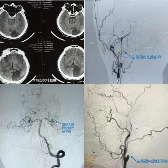 造影显示,脑部血管已经?#29616;?#22581;塞。