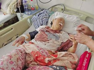 老人满身是血被送到医院。