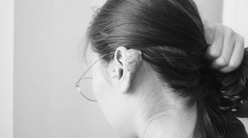 女子耳后长了鹅蛋大的疙瘩