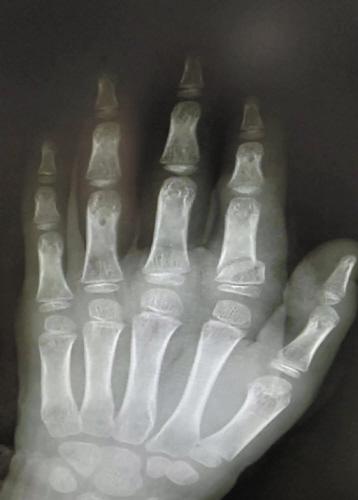 小刚左手的 x光片。