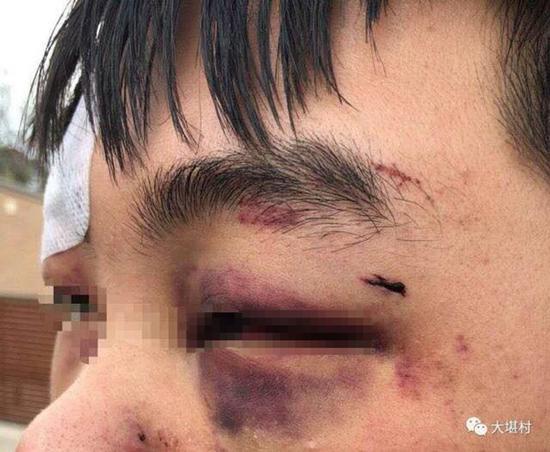 """被殴打学生眼眶淤青(图片来自微信公众号""""大堪村"""")"""