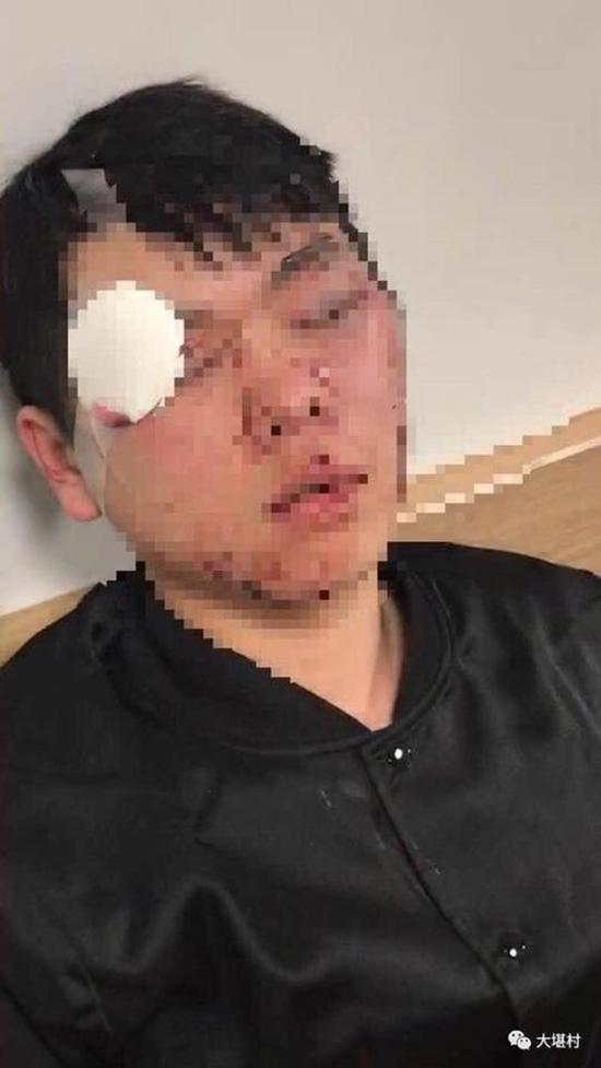 """被殴打学生(图片来自微信公众号""""大堪村"""")"""