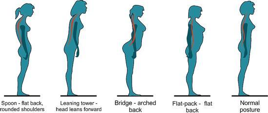 双形体-双语 你的身材是什么型 正确站姿远离背痛图片