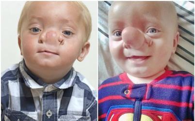 """英国男童特雷齐斯先天患有罕见的""""脑突出症"""",鼻子越长越大。"""