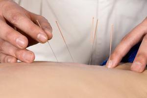 美媒:针灸疗法成华尔街精英解压热门选择