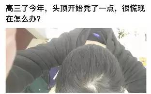 有的学生宝宝还在高中就开始脱发liao