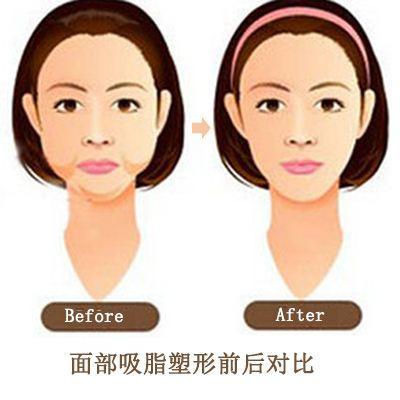 面部吸脂能改变哪些