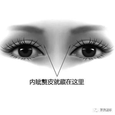 正常眼部结构图