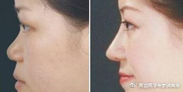 【整形常识】隆鼻后,鼻孔会变小吗?6合心水论坛661664