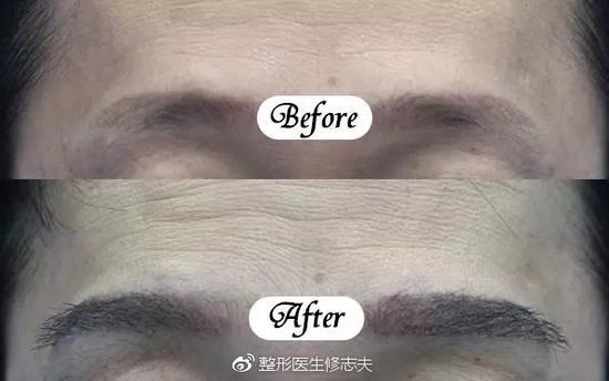 眉毛对颜值的影响究竟有多大?|眉毛|枕部|眉型