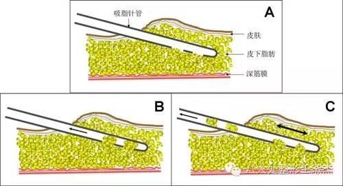 部吸脂手术���