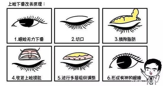 各种眼型分类图解大全