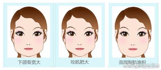那些大脸变小脸的是不是都做去去颊脂垫和脸部吸脂呀