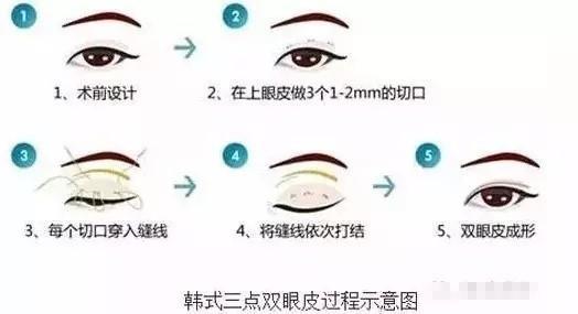 二,韩式三点双眼皮   (1)手术方式:在上眼睑皮肤的最合适位置,取3