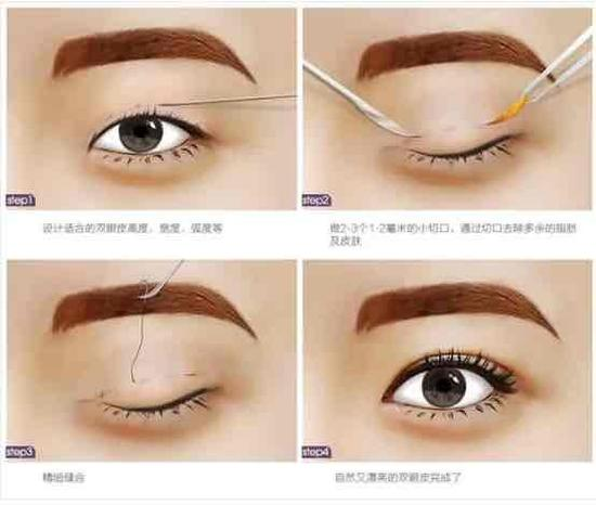 至于说哪种方式适合你自身,这需要看自身眼睛的基础条件、松弛程度、眼皮皮下脂肪和眼窝脂肪的分布和量以及眼睛长度、眼宽、眼眶大小和形状等等这些因素,是因人而异的   一般来说,更加双眼皮跟上眼睑睑缘之间的宽度,双眼皮大致可以分为三种类型:平行型、开扇型、内窄外宽平行型(新月型),双眼皮过宽显得不自然,过窄则是内双!