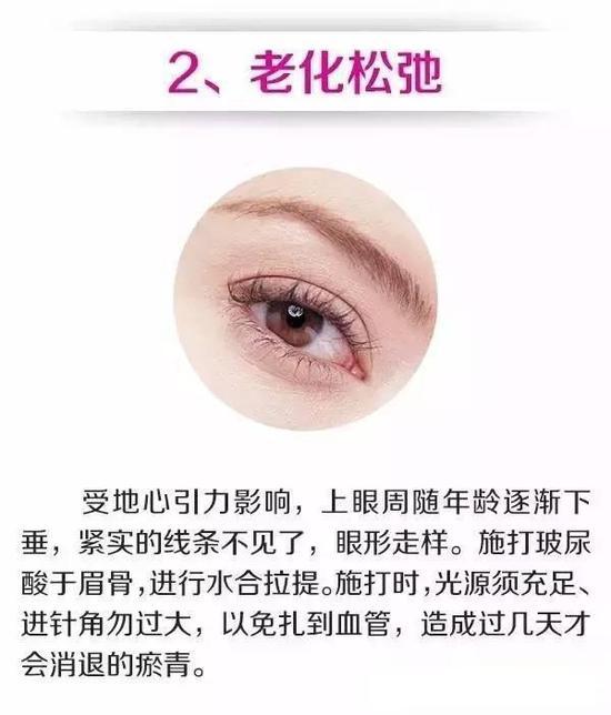 眼周结构解剖图