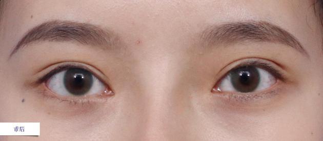 术后-双眼局部