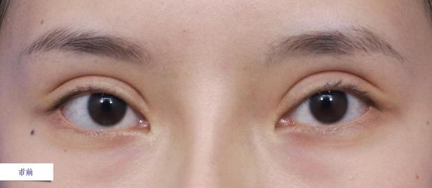 术前-双眼局部