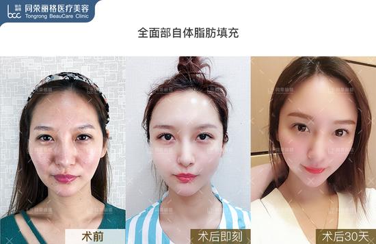 面部自体填充案例3
