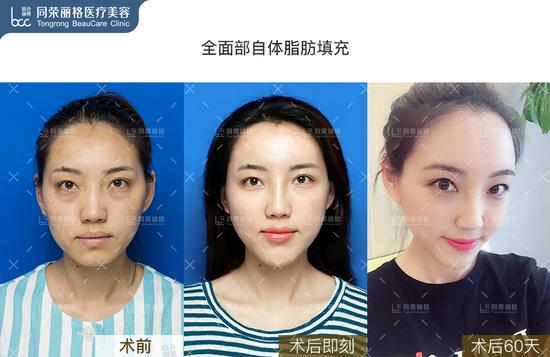 面部自体填充案例1