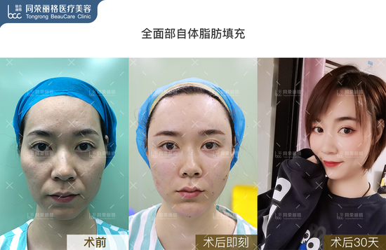 面部自体填充案例2