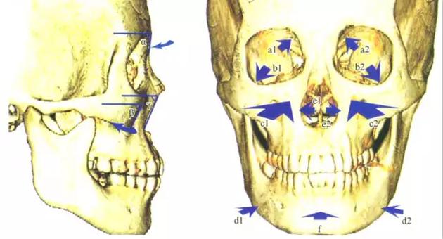 骨骼老化图解