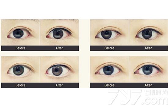 美瞳線有沒必要紋 正確對待美瞳線的選擇